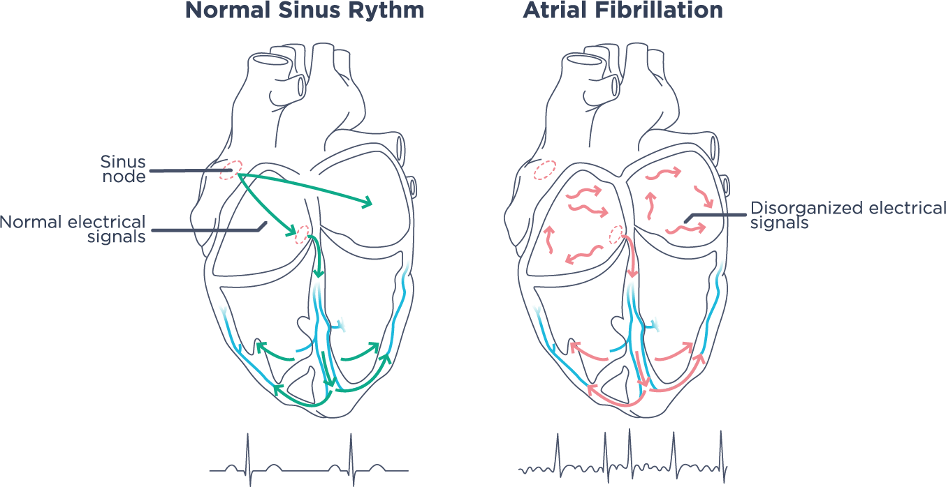 Heart - Atrial Fibrillation
